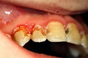 zahn parodontose