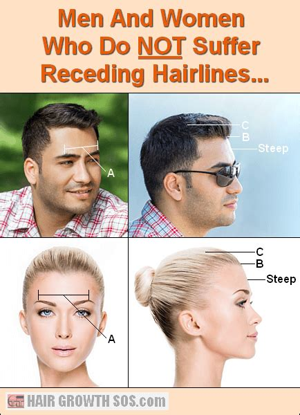 best shoo for mens hair do women have receding hairlines going bald or have a receding hairline you need to buzz