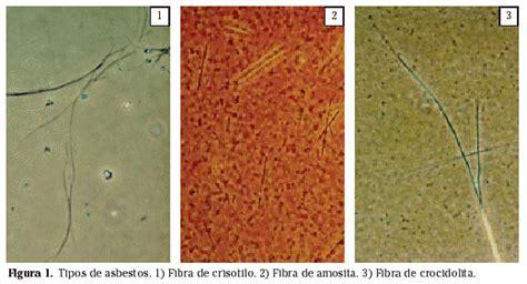 caracteristicas propiedades patogenia  fuentes de