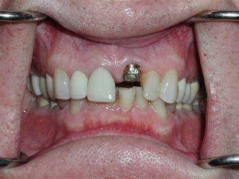dental implants healing abutment tooth  dr caputo