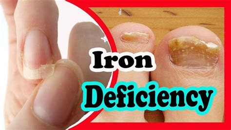 Best 25+ Signs Of Iron Deficiency Ideas On Pinterest