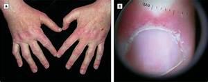 Anti-TNF–Induced Dermatomyositis - Dermatology - JAMA Dermatology - The JAMA Network Dermatomyositis