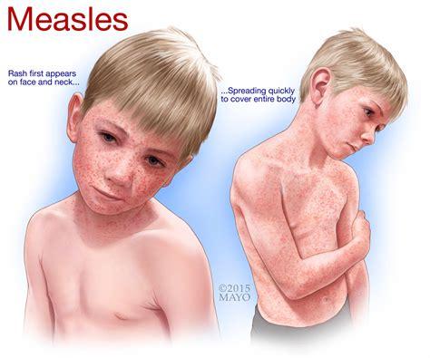 Measles Rash Symptoms