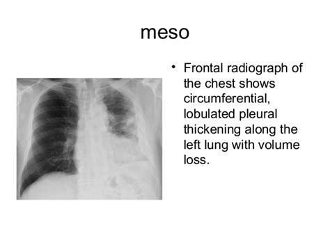 pleural diseases chest radiology part