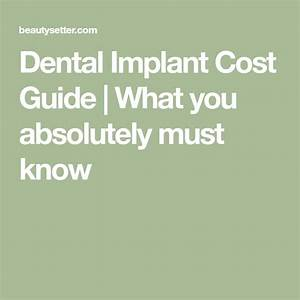 Dental Implant Cost Guide