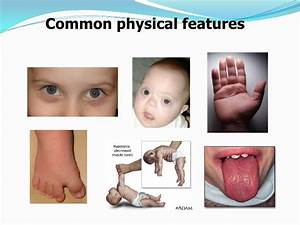 down syndrome-