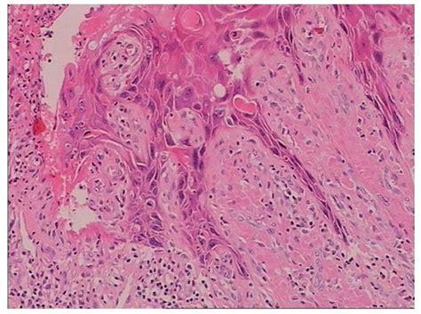 surgical approach  giant condyloma buschkeloewenstein