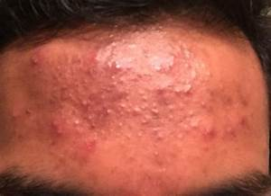 Small bumps on forehead (closed comedones?) - General acne ...