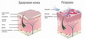 Лечение псориаза на коленях и локтях