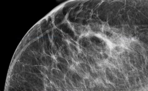 This is especially true for smaller centers or those with low breast mri case volumes. VuComp Releases New Version of M-Vu Breast Density | Imaging Technology News