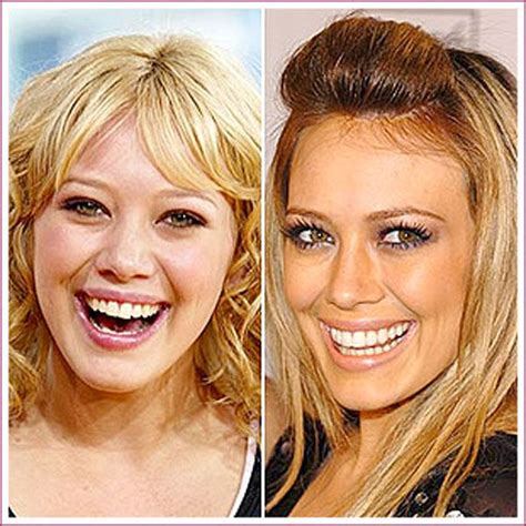 Celebrity Plastic Surgery Before & After (56 Pics