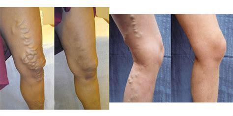 varicose veins treatment  qa  ucsf interventional