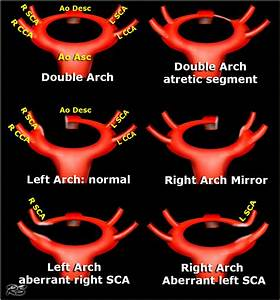 The Radiology Assistant   Vascular Anomalies Of Aorta