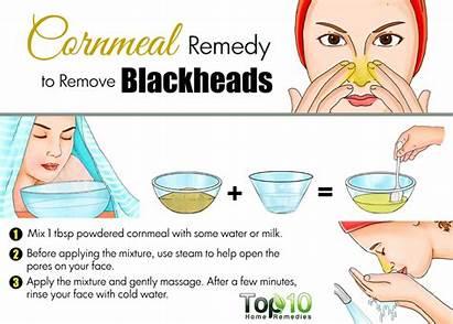 Blackheads Remedies Skin Face Rid Top10homeremedies Fast