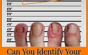 Can You Identify Your Ingrown Toenail Culprit