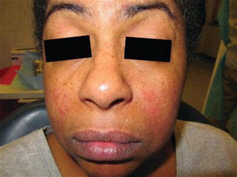 oral manifestations  autoimmune immune mediated