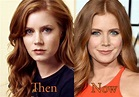 Amy Adams Plastic Surgery, Before and After Nose Job Pictures