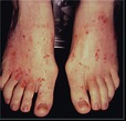 How To Detect And Treat Pruritus | Podiatry Today