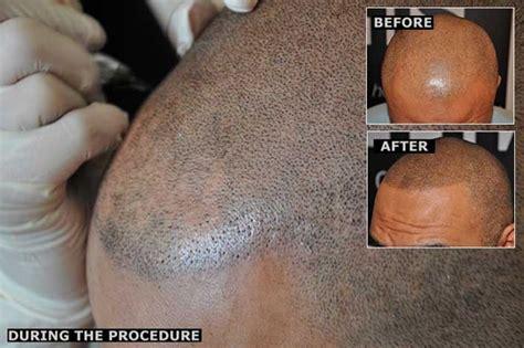 Realistic Hair Tattoos Eliminate Baldness Forever  Bit Rebels