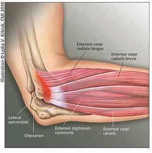 Tennis Elbow  Causes  Symptoms  Treatment Tennis Elbow