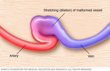 Arteriovenous fistula Disease Reference Guide - Drugs.com