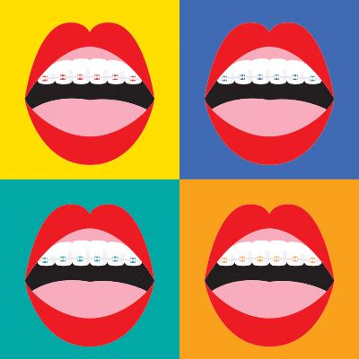 What Color Should I Get by What Colors Of Braces Should I Get Omega Dental Houston Tx