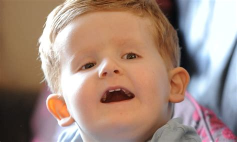 Alfie Clamp, 2, Is 1st Person Born With Extra Strand Of