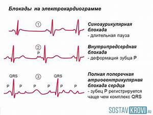 Гипертония и блокада сердца