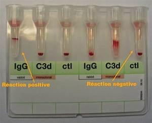 Comment Etre Negatif Au Test Salivaire : le tda permet de r v ler la pr sence d 39 anticorps fix sur l 39 antig ne ~ Medecine-chirurgie-esthetiques.com Avis de Voitures