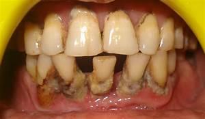 Family Dentist Ahmedabad   Bad Breadth Treatment  Teeth
