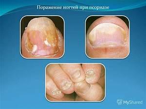 Артрит симптомы при псориазе