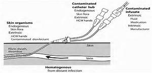Routes For Central Venous Catheter Contamination With