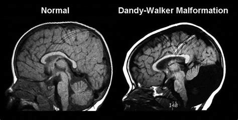 dandy walker syndrome malformation brain ultrasound vermis cerebellar posterior fossa symptoms scan ventricle normal hypoplasia head fourth fetal cerebellum patient