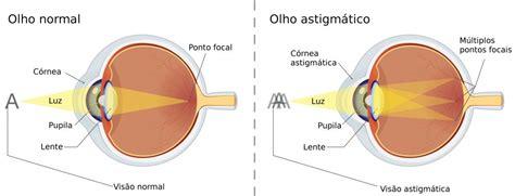 astigmatismo tipos de astigmatismo doencas da visao