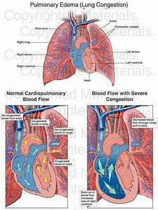 Best 25  Pulmonary Edema Ideas On Pinterest