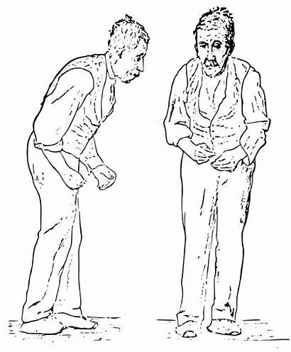 Parkinson Disease Svg William Gowers 1886 Sir