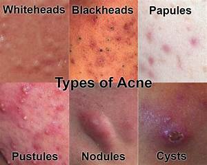 Types of Acne With Pictures: Mild, Moderate, Severe ...