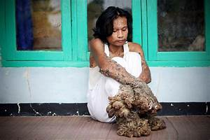 "Dede Koswara in Indonesian ""Tree Man"" Continues Treatment ..."