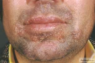 Herpes Viral Shedding Test herpes pictures and clinical information