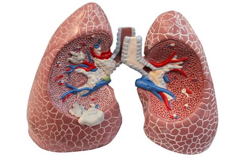 Newly Discovered Toxin May Cause Lung Inflammation
