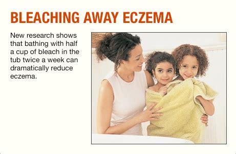 bleach baths  eczema treatment prove effective