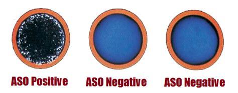 Anti-streptolysin O (aso) Test