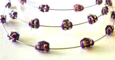 jual karet behel motif behel motif kotak ungu behel gigi murah original