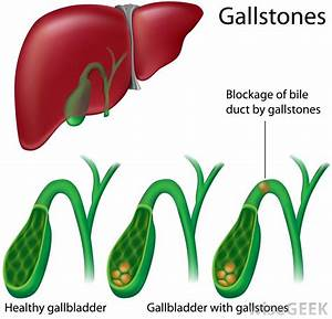 What Are Gallbladder Adhesions   With Pictures