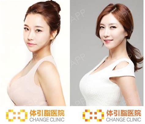 韩国最好的隆胸医院是哪里?-医院韩国隆胸医疗美容