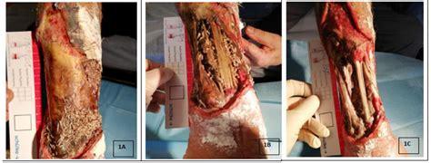 jcm  full text effectiveness  chronic wound