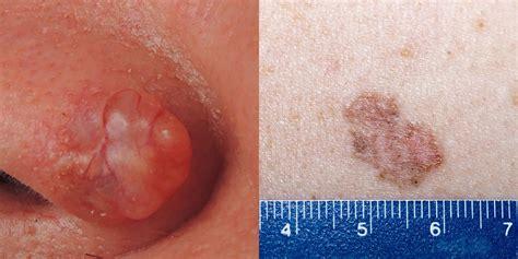 skin cancer symptoms   moles signs  skin
