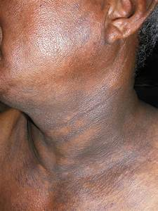 Image Gallery Neck Discoloration