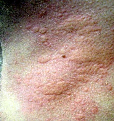 mycose du siege chez le bebe allergie au soleil les allergies de peau et boutons au