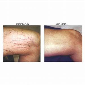 MD Cosmedical Solutions - New Sydney Laser Leg Veins and ...